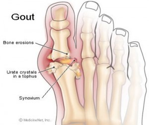 Krystexxa Anti-Gout Drug