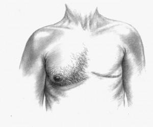 Do Men Get Breast Cancer