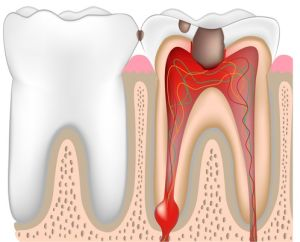 can you die from tooth infection