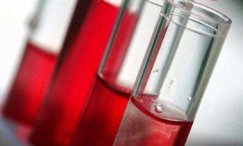 blood tests diagnose depression