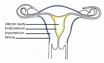 differences between endometrial vs uterine cancer